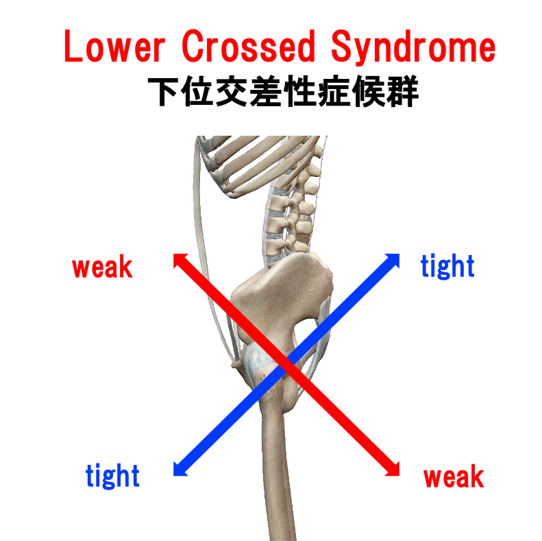 Lower Crossed Syndrome 下位交差性症候群